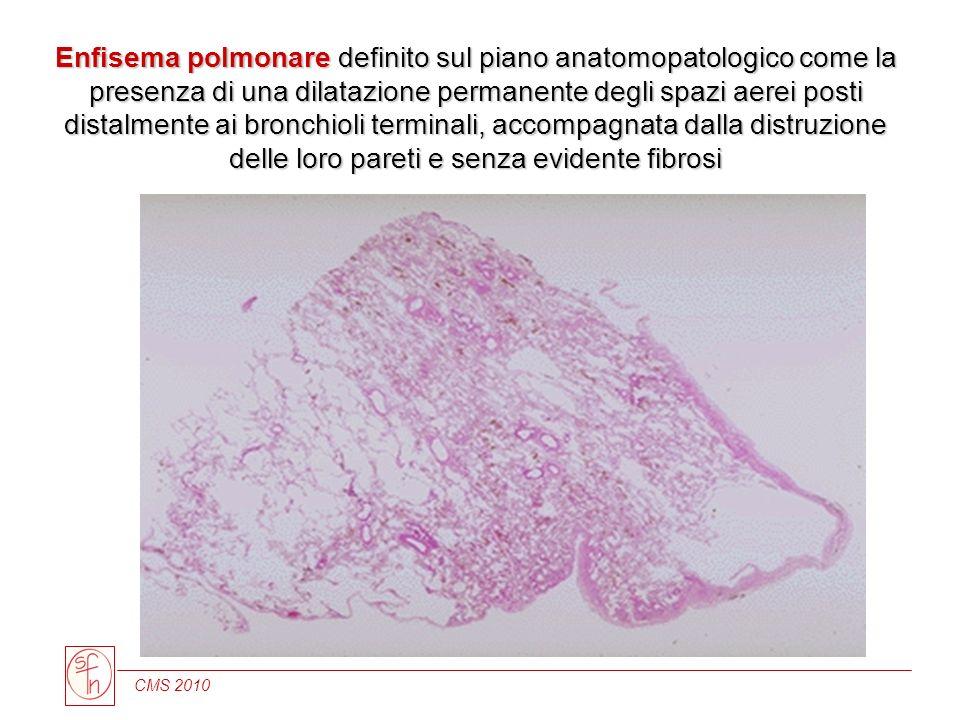 CMS 2010 Enfisema polmonare definito sul piano anatomopatologico come la presenza di una dilatazione permanente degli spazi aerei posti distalmente ai