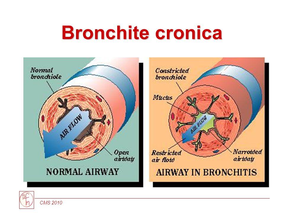 CMS 2010 Bronchite cronica