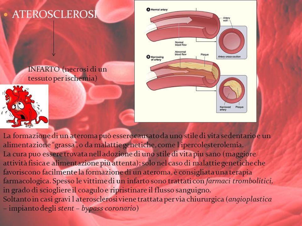 ATEROSCLEROSI INFARTO (necrosi di un tessuto per ischemia) La formazione di un ateroma può essere causato da uno stile di vita sedentario e un aliment
