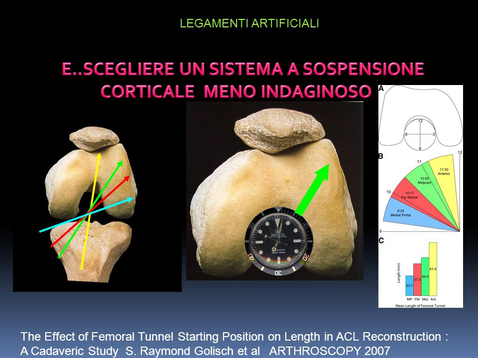 The Effect of Femoral Tunnel Starting Position on Length in ACL Reconstruction : A Cadaveric Study S.