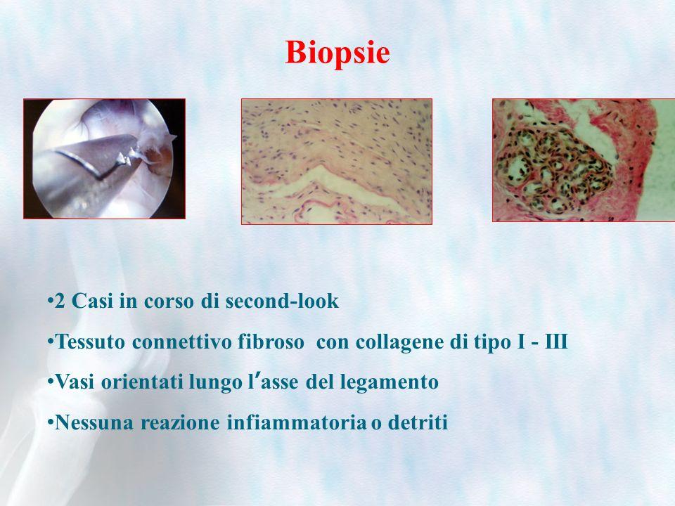 Biopsie 2 Casi in corso di second-look Tessuto connettivo fibroso con collagene di tipo I - III Vasi orientati lungo lasse del legamento Nessuna reazi