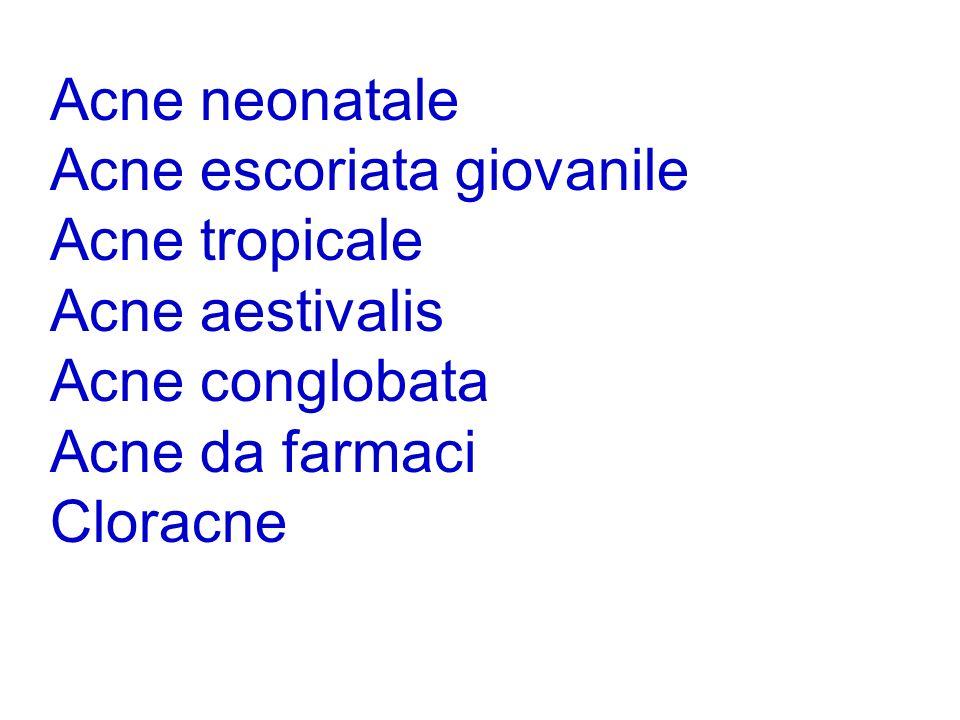 Acne neonatale Acne escoriata giovanile Acne tropicale Acne aestivalis Acne conglobata Acne da farmaci Cloracne