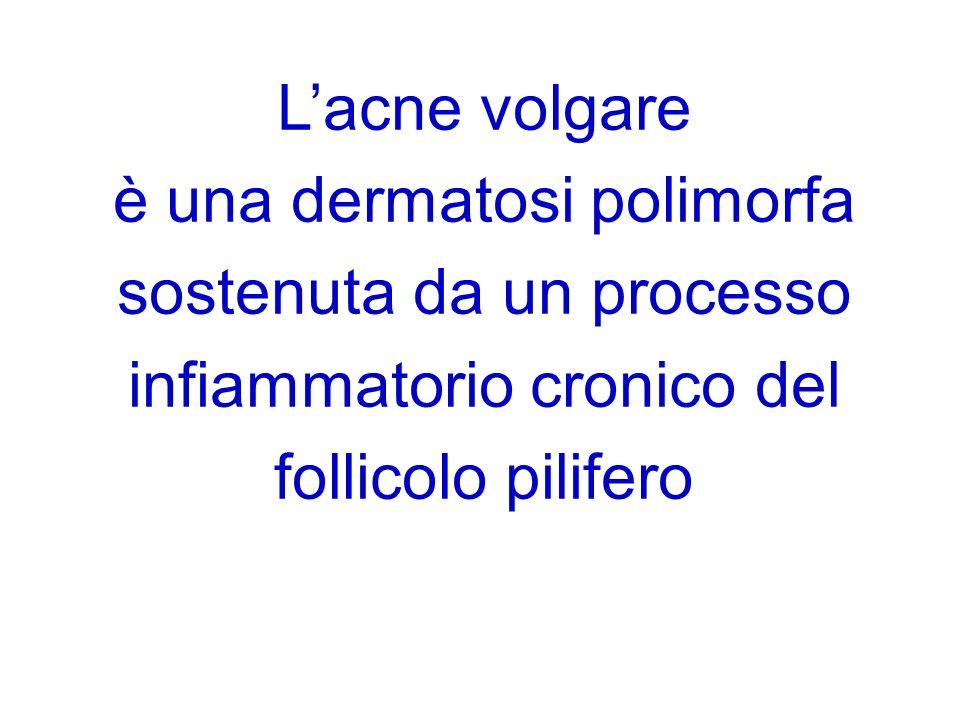 Lacne volgare è una dermatosi polimorfa sostenuta da un processo infiammatorio cronico del follicolo pilifero