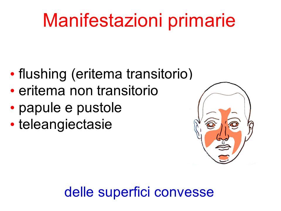 Manifestazioni primarie flushing (eritema transitorio) eritema non transitorio papule e pustole teleangiectasie delle superfici convesse
