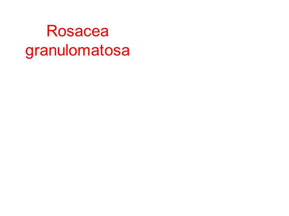 Rosacea granulomatosa