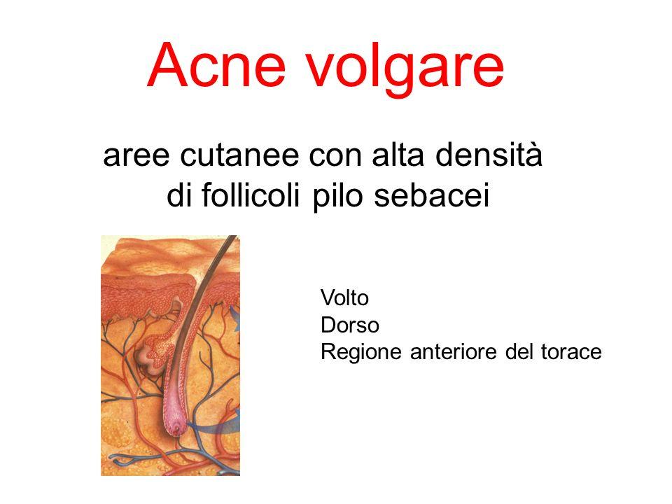 Comedoni Papule Pustole Noduli Cisti Cicatrici Lesioni elementari tipiche dellacne volgare Distribuite nelle aree sebacee
