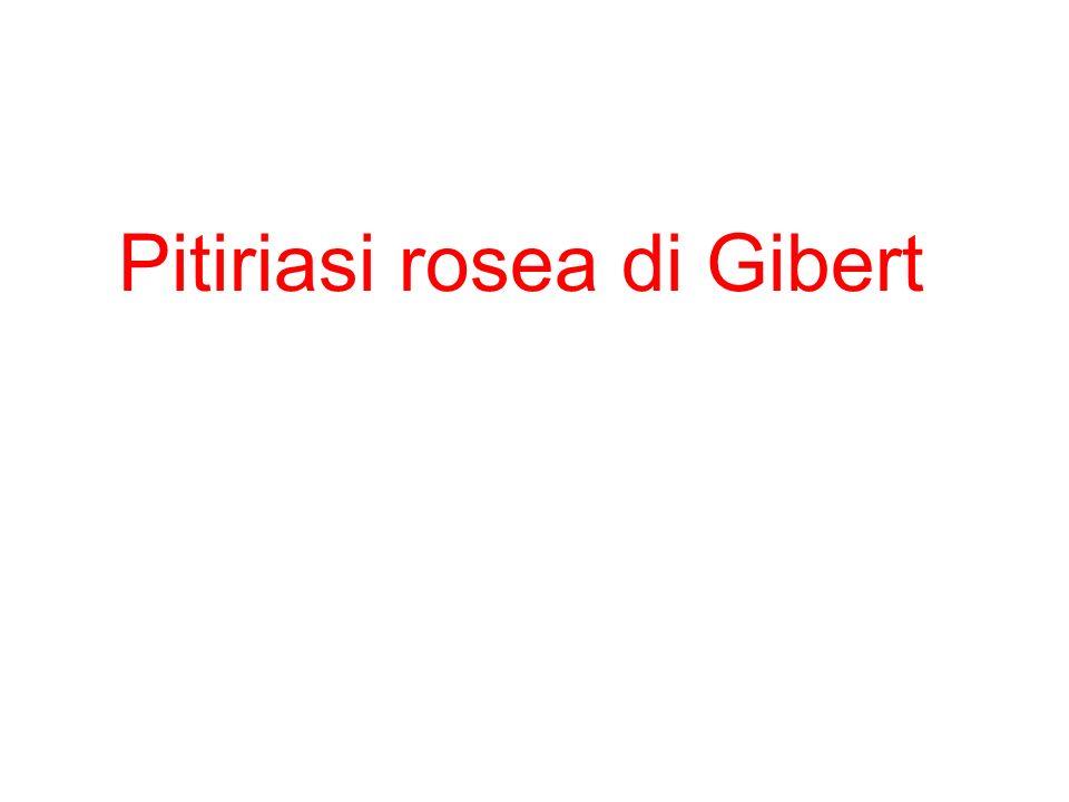 Pitiriasi rosea di Gibert
