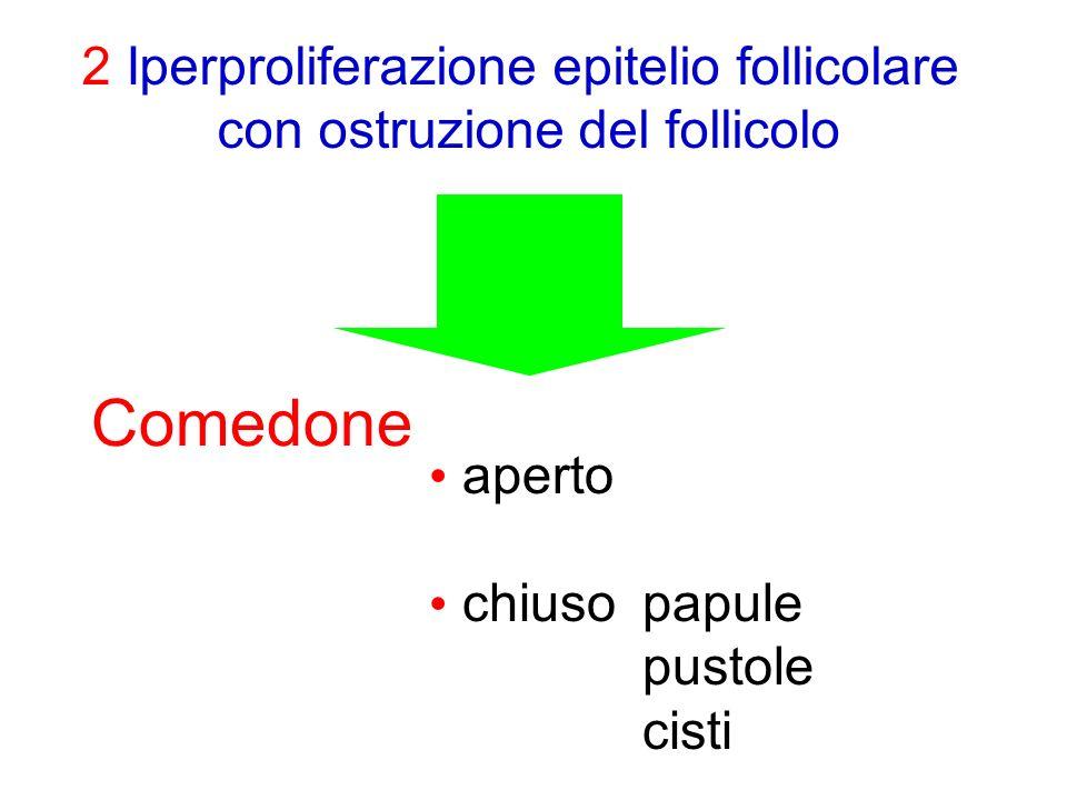 2 Iperproliferazione epitelio follicolare con ostruzione del follicolo Comedone aperto chiusopapule pustole cisti