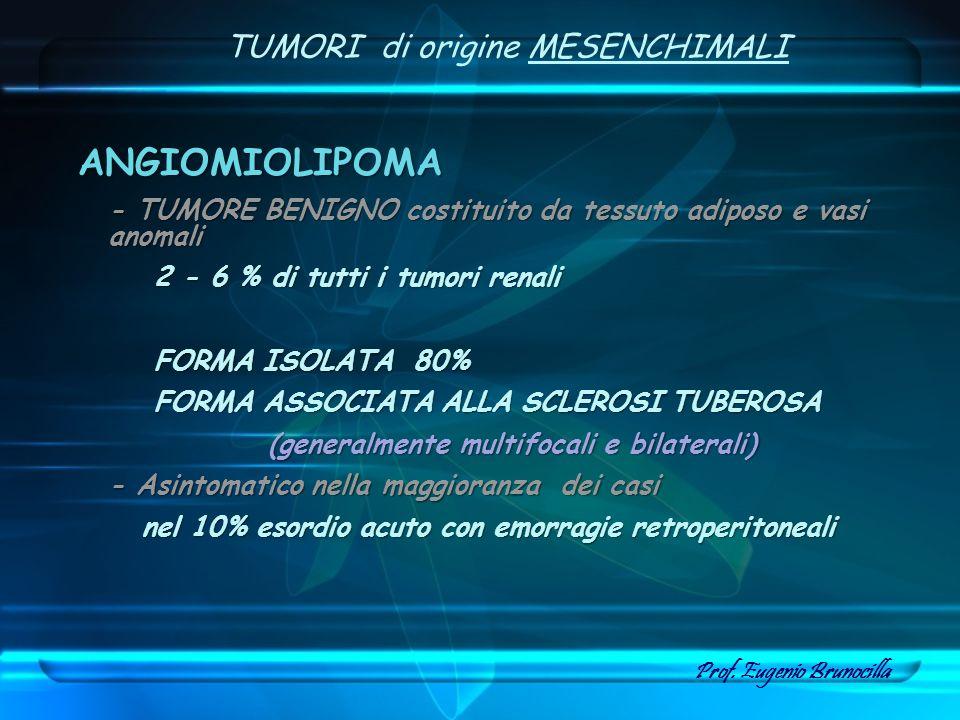 TUMORI di origine MESENCHIMALI ANGIOMIOLIPOMA - TUMORE BENIGNO costituito da tessuto adiposo e vasi anomali 2 - 6 % di tutti i tumori renali 2 - 6 % d