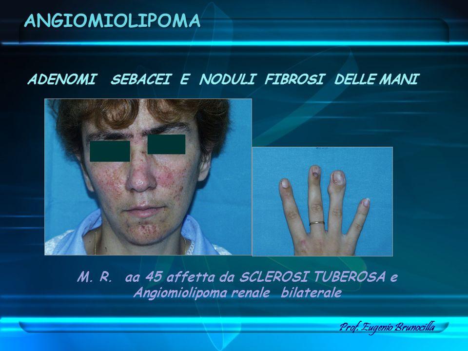 ADENOMI SEBACEI E NODULI FIBROSI DELLE MANI M. R. aa 45 affetta da SCLEROSI TUBEROSA e Angiomiolipoma renale bilaterale Prof. Eugenio Brunocilla ANGIO