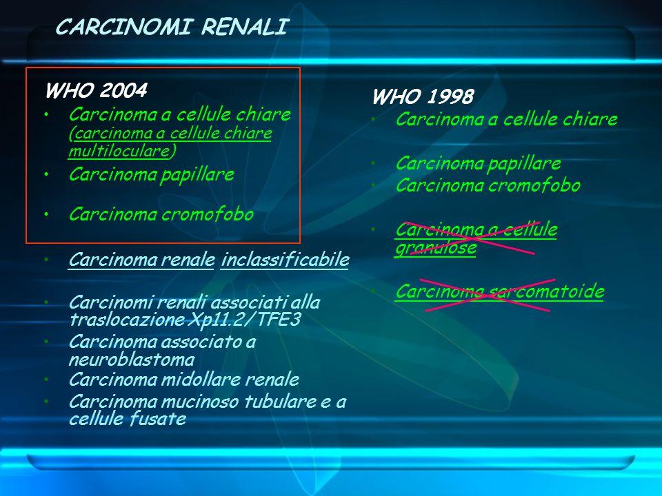 WHO 2004 Carcinoma a cellule chiare (carcinoma a cellule chiare multiloculare) Carcinoma papillare Carcinoma cromofobo Carcinoma renale inclassificabi