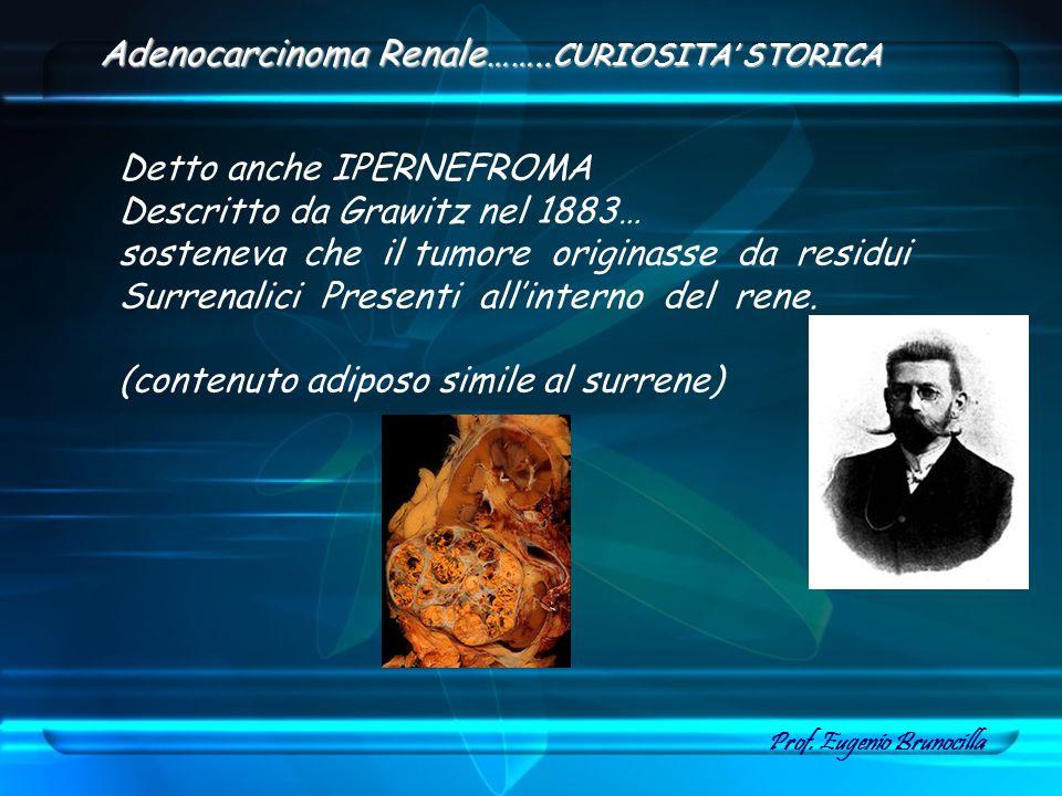 Detto anche IPERNEFROMA Descritto da Grawitz nel 1883… sosteneva che il tumore originasse da residui Surrenalici Presenti allinterno del rene. (conten