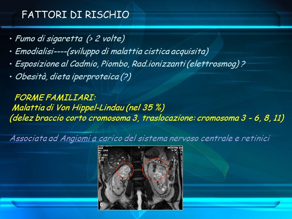 FATTORI DI RISCHIO Fumo di sigaretta (> 2 volte) Emodialisi----(sviluppo di malattia cistica acquisita) Esposizione al Cadmio, Piombo, Rad.ionizzanti