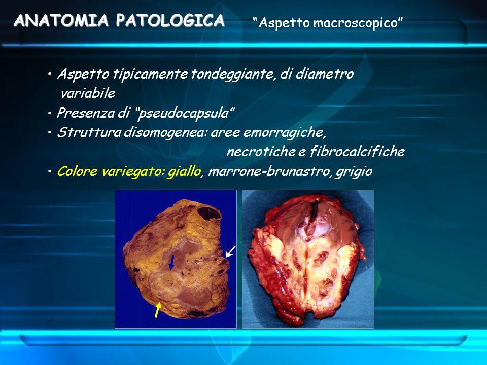 Aspetto macroscopico Aspetto tipicamente tondeggiante, di diametro variabile Presenza di pseudocapsula Struttura disomogenea: aree emorragiche, necrot