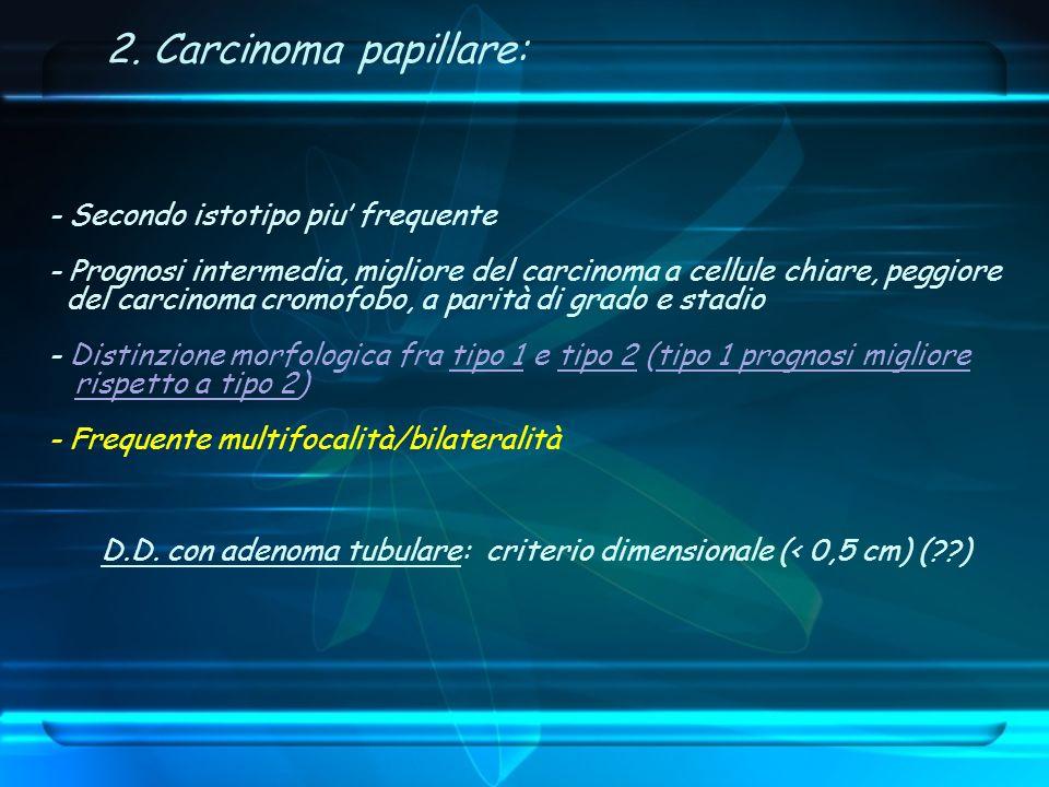 2. Carcinoma papillare: - Secondo istotipo piu frequente - Prognosi intermedia, migliore del carcinoma a cellule chiare, peggiore del carcinoma cromof