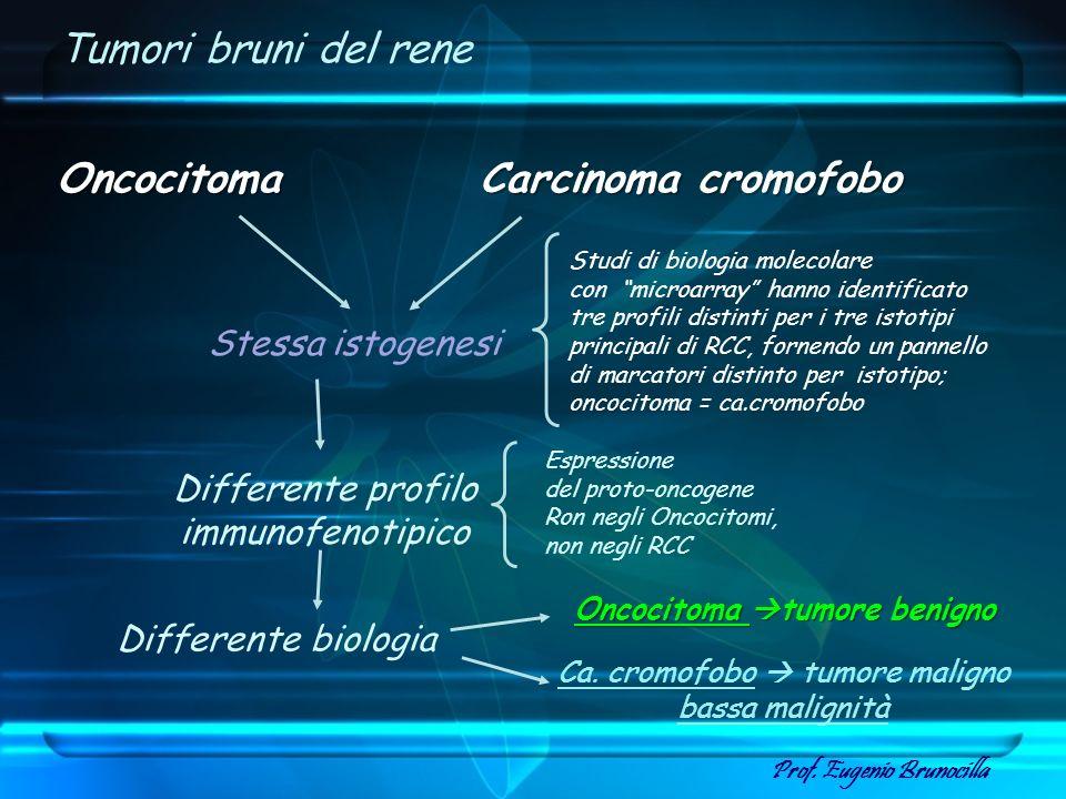 Tumori bruni del rene Oncocitoma Oncocitoma Carcinoma cromofobo Stessa istogenesi Differente biologia Oncocitoma tumore benigno Ca. cromofobo tumore m