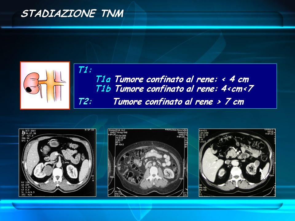 STADIAZIONE TNM T1: T1a Tumore confinato al rene: < 4 cm T1b Tumore confinato al rene: 4<cm<7 T2: Tumore confinato al rene > 7 cm