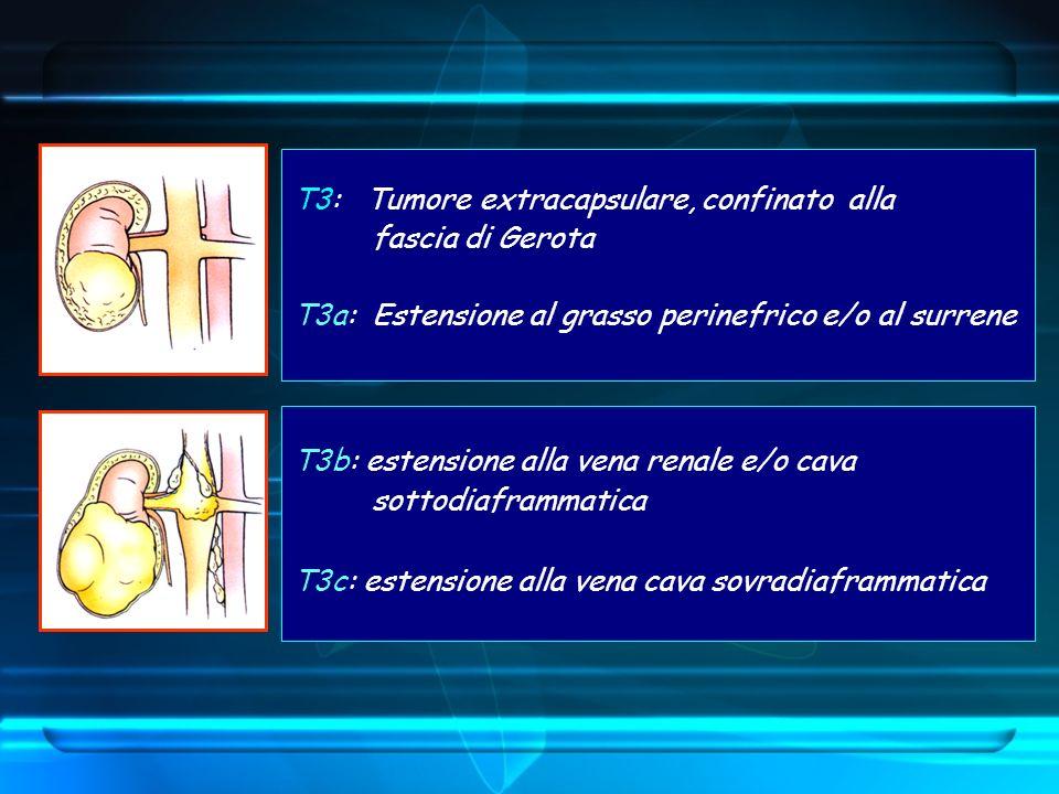T3: Tumore extracapsulare, confinato alla fascia di Gerota T3a: Estensione al grasso perinefrico e/o al surrene T3b: estensione alla vena renale e/o c