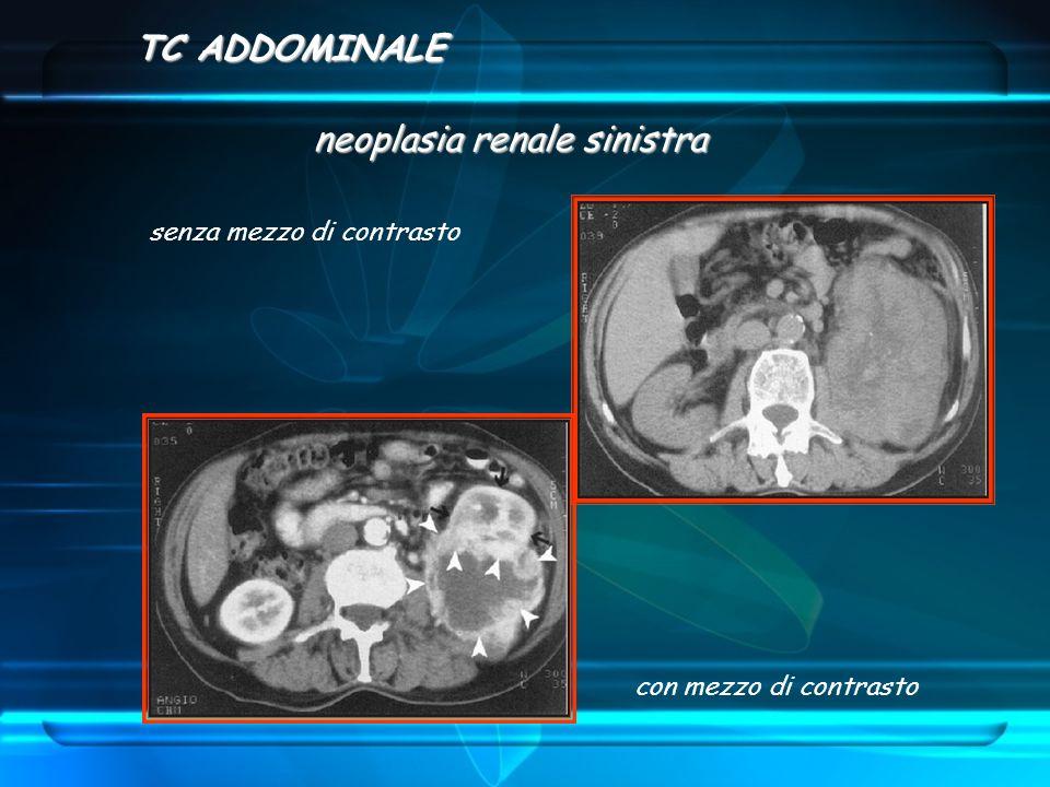TC ADDOMINALE neoplasia renale sinistra con mezzo di contrasto senza mezzo di contrasto
