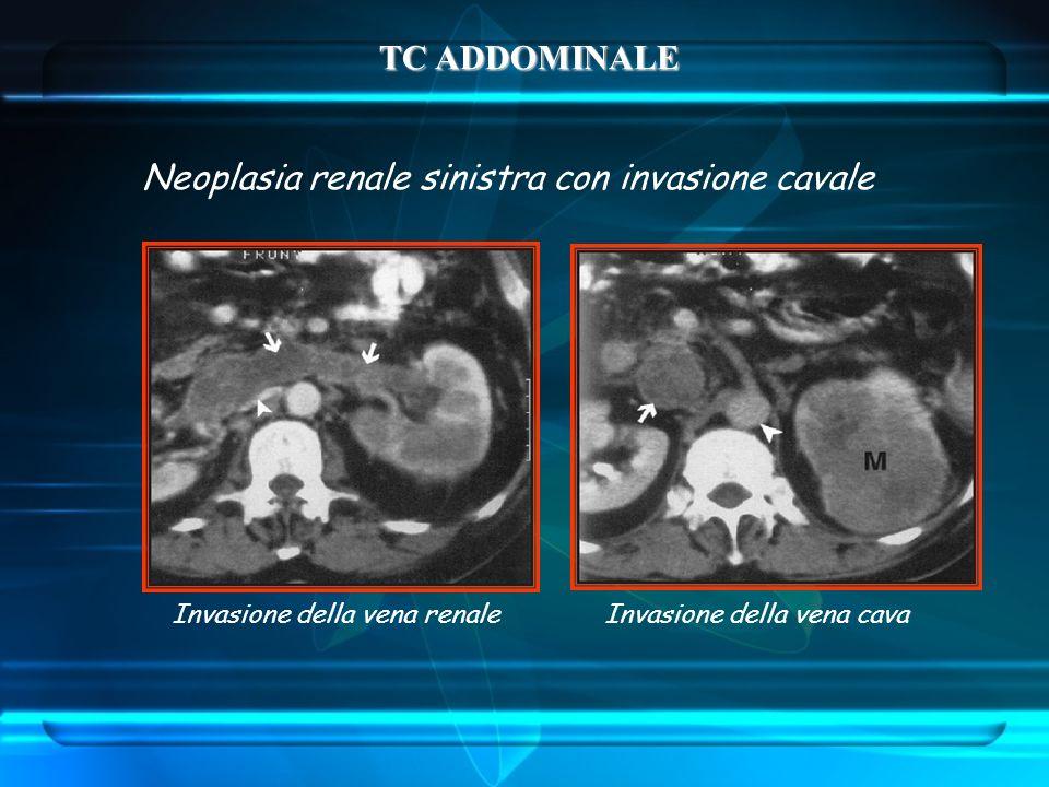 TC ADDOMINALE Neoplasia renale sinistra con invasione cavale Invasione della vena renaleInvasione della vena cava