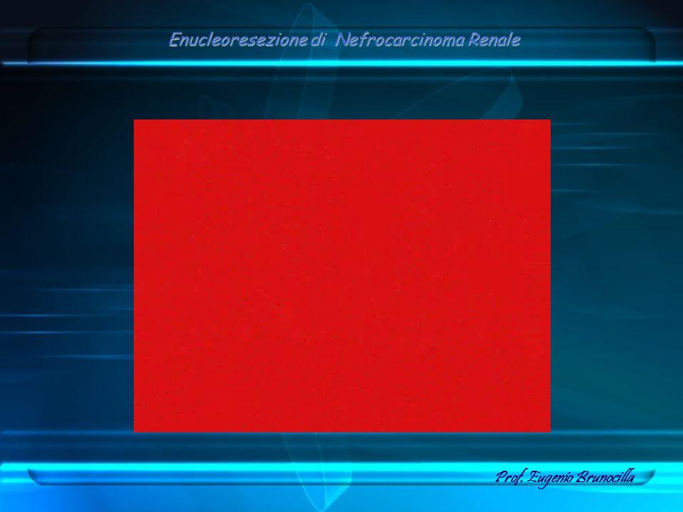 Enucleoresezione di Nefrocarcinoma Renale Prof. Eugenio Brunocilla