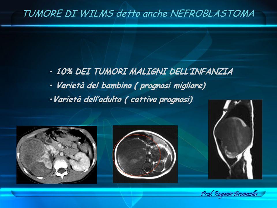 10% DEI TUMORI MALIGNI DELLINFANZIA Varietà del bambino ( prognosi migliore) Varietà delladulto ( cattiva prognosi) TUMORE DI WILMS detto anche NEFROB
