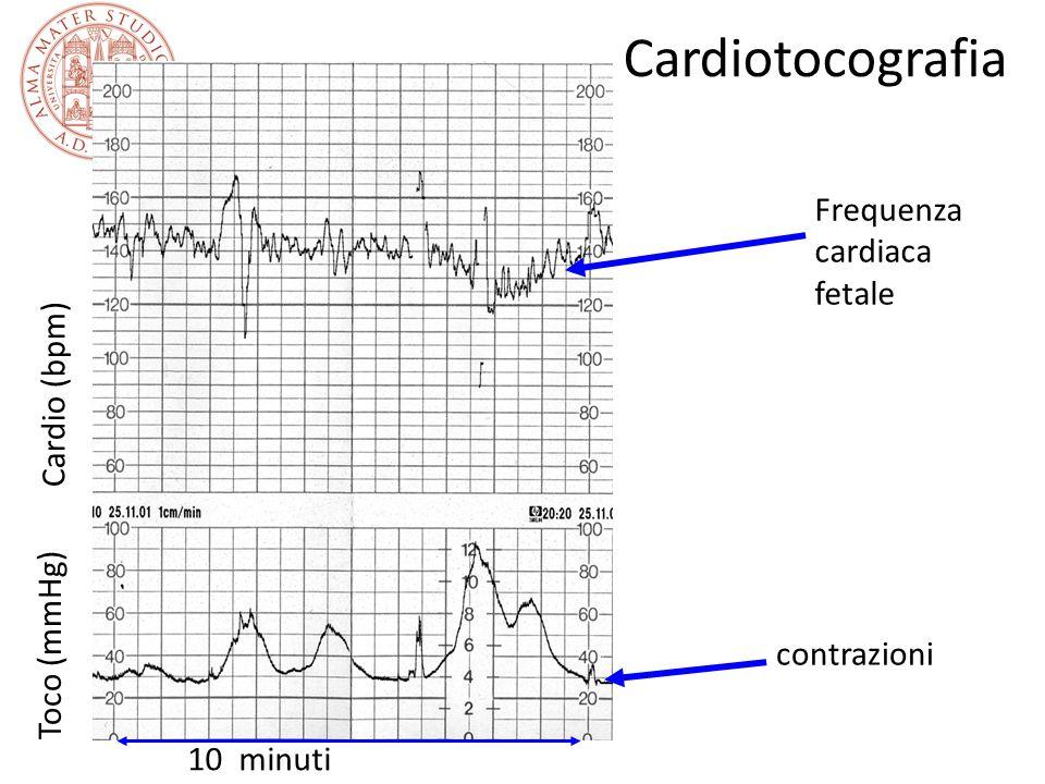 Cardiotocografia Cardio (bpm) Toco (mmHg) 10 minuti Frequenza cardiaca fetale contrazioni
