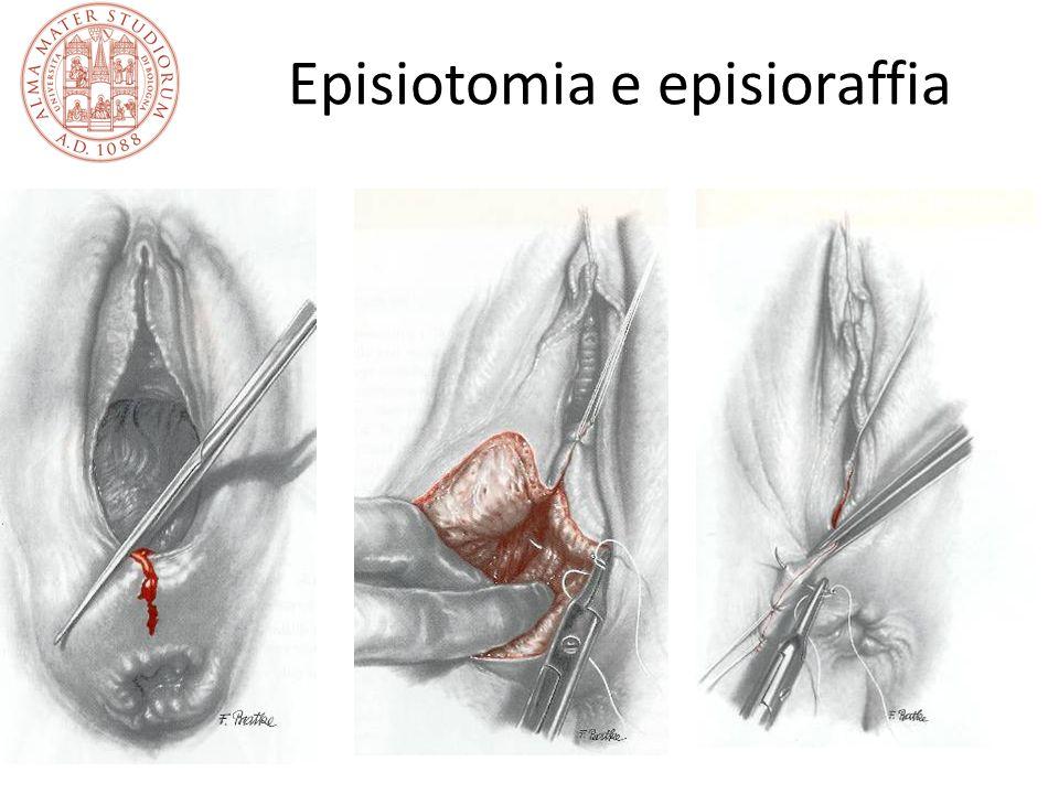 La paralisi cerebrale La paralisi cerebrale è la tipica manifestazione della asfissia intra-partum severa, a lungo considerata patognomica Nella maggior parte dei casi è secondaria ad altre cause, prematurità in primo luogo