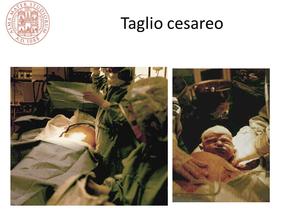 Il controllo del benessere fetale e l estrazione fetale Un controllo ravvicinato del benessere fetale è necessario in ogni gravidanza, mediante ascoltazione del battito con fonendoscopio o cardiotocografia Se sussiste una forte probabilità di sofferenza fetale il feto deve essere estratto Le modalità di intervento dipendono dallo stato di progressione del travaglio di parto