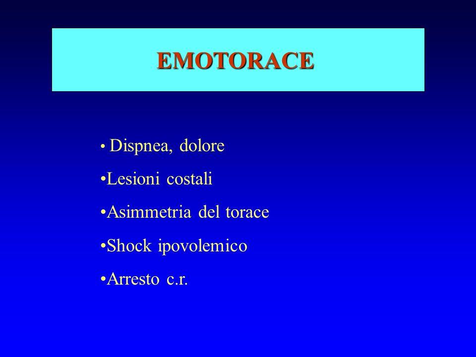 EMOTORACE Dispnea, dolore Lesioni costali Asimmetria del torace Shock ipovolemico Arresto c.r.