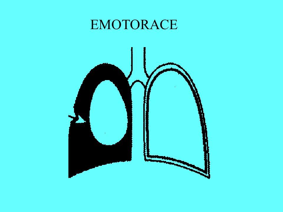 EMOTORACE