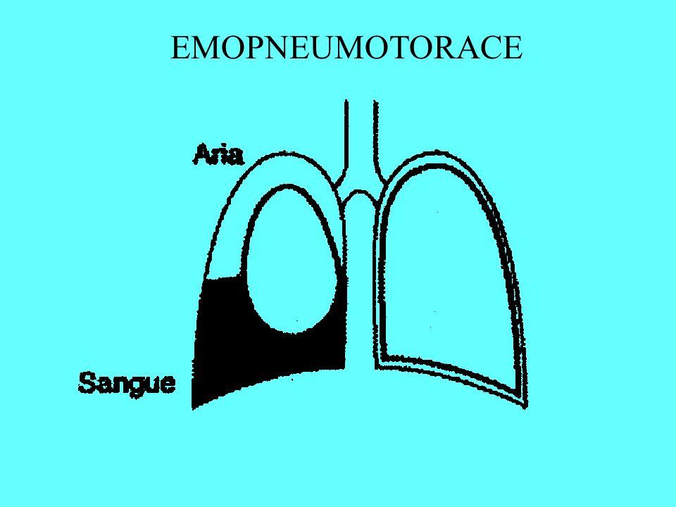 EMOPNEUMOTORACE