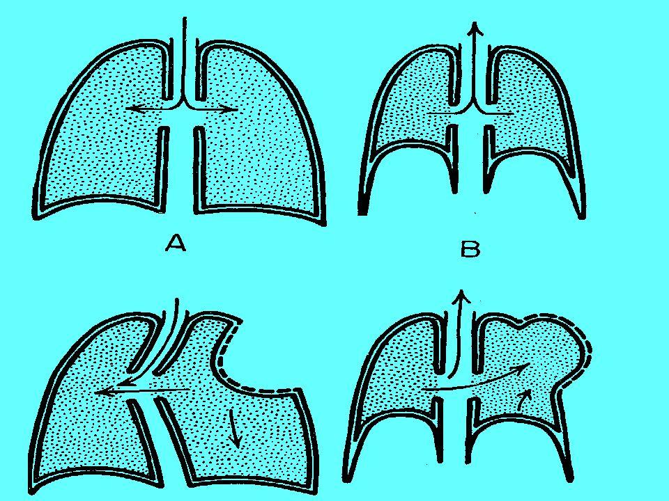 COMPRESSIONE TORACICA Asfissia Elevato rischio di danni agli organi interni