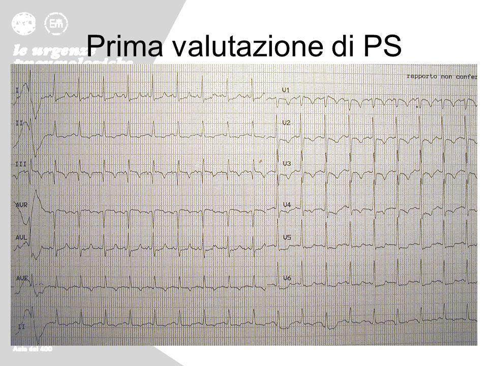 Prima valutazione di PS Minimo impegno respiratorio, turgore giugulare, non edemi né altri segni di TVP, obiettività cardiopolmonare nella norma eccet