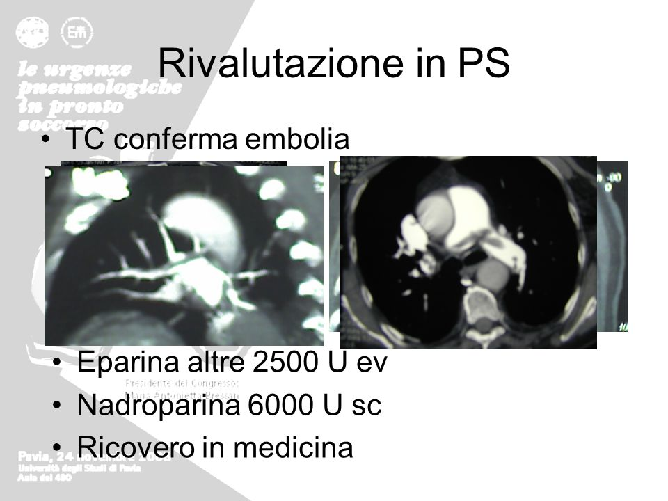 Rivalutazione in PS TC conferma embolia Eparina altre 2500 U ev Nadroparina 6000 U sc Ricovero in medicina