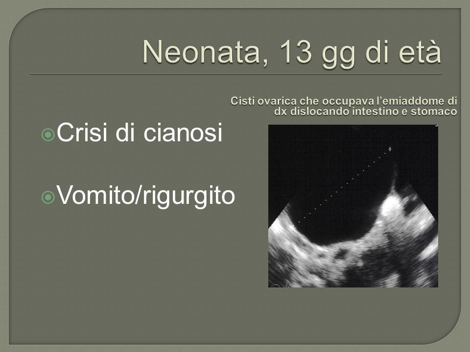 Crisi di cianosi Vomito/rigurgito