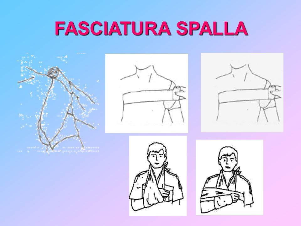 FASCIATURA SPALLA