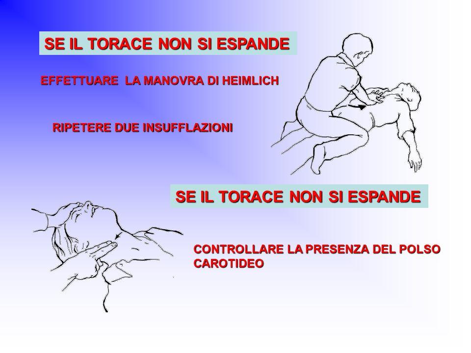 EFFETTUARE LA MANOVRA DI HEIMLICH RIPETERE DUE INSUFFLAZIONI CONTROLLARE LA PRESENZA DEL POLSO CAROTIDEO SE IL TORACE NON SI ESPANDE