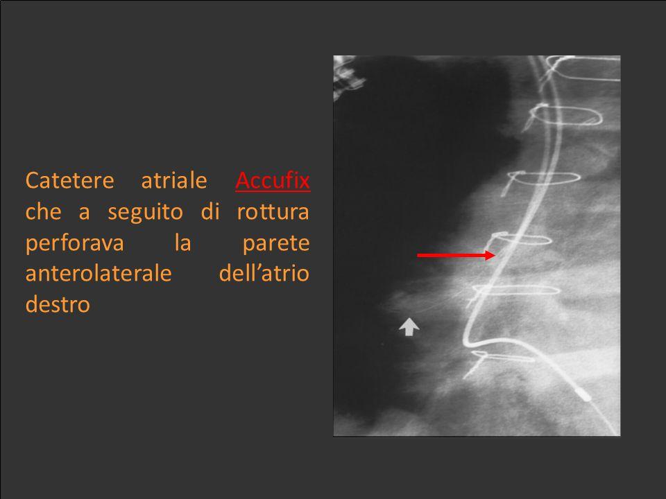 Catetere atriale Accufix che a seguito di rottura perforava la parete anterolaterale dellatrio destro