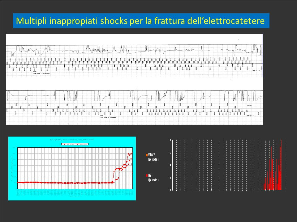 Multipli inappropiati shocks per la frattura dellelettrocatetere