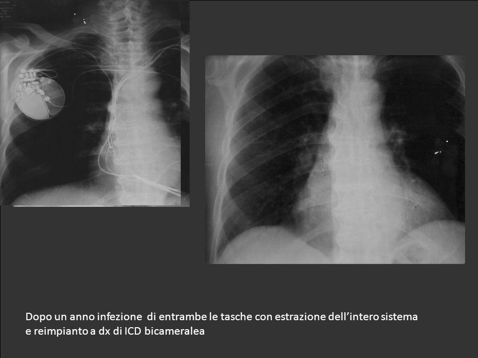 Impianto di PM bicamerale a sx Upgrading a ICD biventricolare Malfunzione di Sprint Fidelis : impianto di ICD controlaterale e nuovo elettrocatetere a