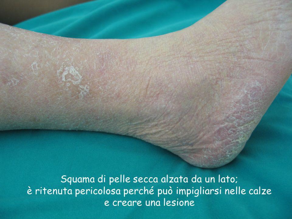 Squama di pelle secca alzata da un lato; è ritenuta pericolosa perché può impigliarsi nelle calze e creare una lesione