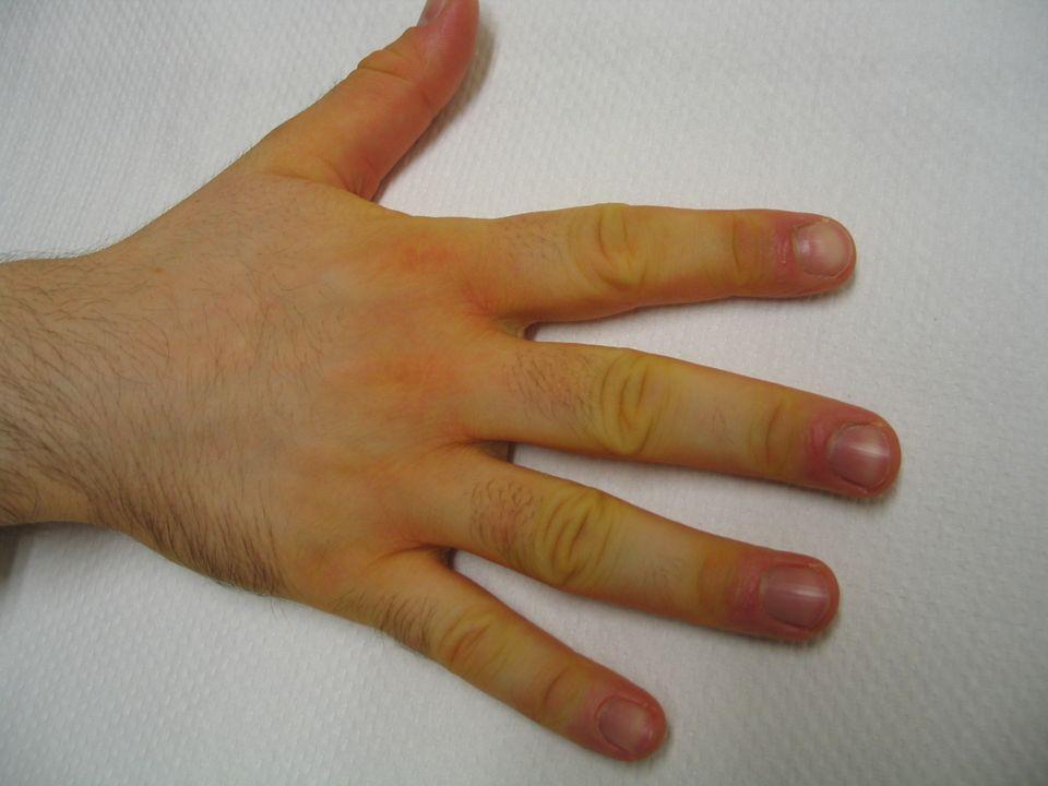 ERITROSI E la colorazione rossa della cute.
