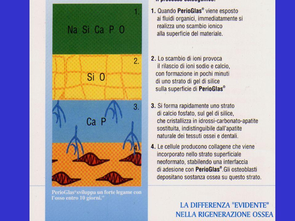 PerioGlass