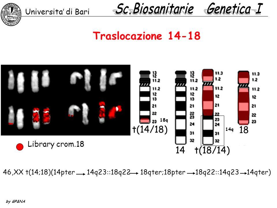 Traslocazione 14-18 Universita di Bari by GP&NA 14 t(18/14) 18 t(14/18) 18q 14q 46,XX t(14;18)(14pter 14q23::18q22 18qter;18pter 18q22::14q23 14qter)