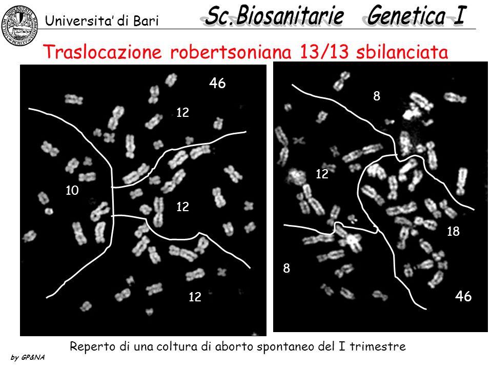 Traslocazione robertsoniana 13/13 sbilanciata Universita di Bari by GP&NA 12 10 12 46 8 12 18 8 46 Reperto di una coltura di aborto spontaneo del I tr
