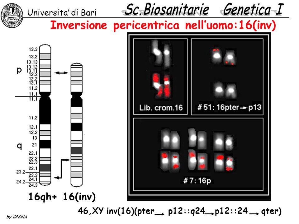 Inversione pericentrica nelluomo:16(inv) Universita di Bari by GP&NA 46,XY inv(16)(pter p12::q24 p12::24 qter) 16qh+16(inv)