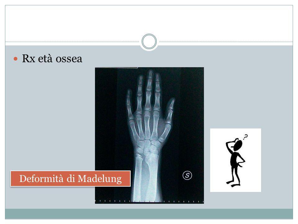 Deformità di Madelung