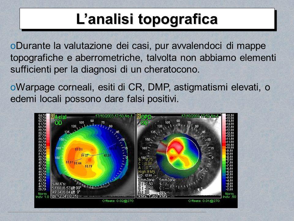 oDurante la valutazione dei casi, pur avvalendoci di mappe topografiche e aberrometriche, talvolta non abbiamo elementi sufficienti per la diagnosi di