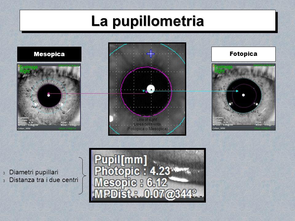 MesopicaFotopica LOS Line of sight Linea della vista (Fotopica o Mesopica) 3 Diametri pupillari 3 Distanza tra i due centri La pupillometria